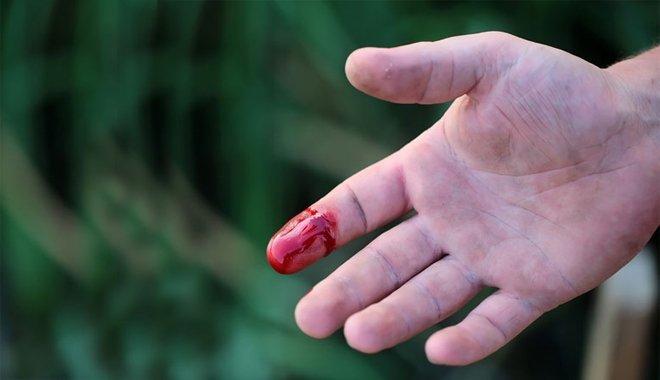 Mơ thấy tay mình dính máu có ý nghĩa gì?