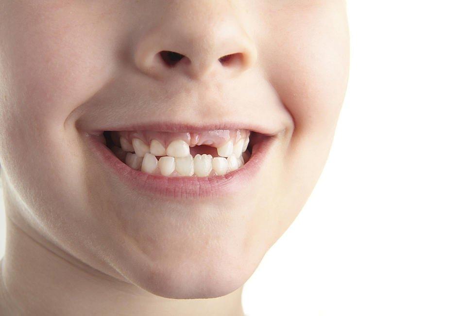 Mơ thấy rụng răng cũng có thể là lời cảnh báo sớm cho sự nghiệp của bạn
