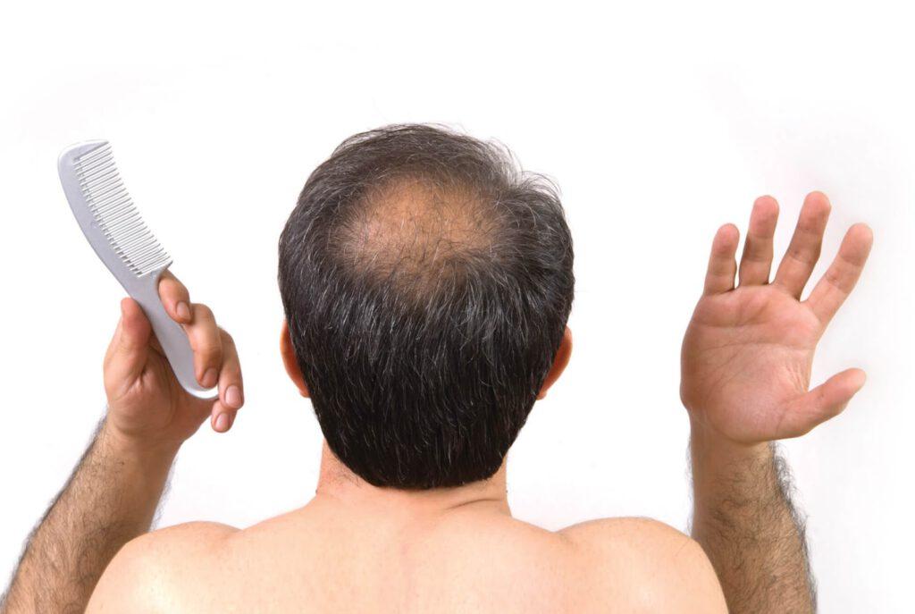Cảnh báo khi đàn ông mơ thấy bị rụng tóc
