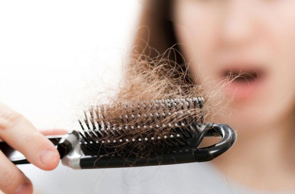 Điềm báo khi nằm mơ thấy mình bị rụng rất nhiều tóc